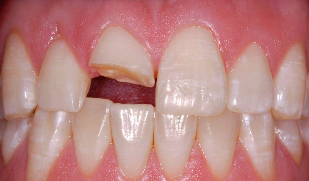 clínica dental a Girona, urgències