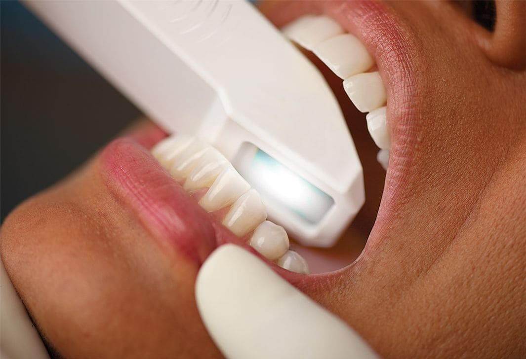 clínica dental a Girona, escàner intraoral