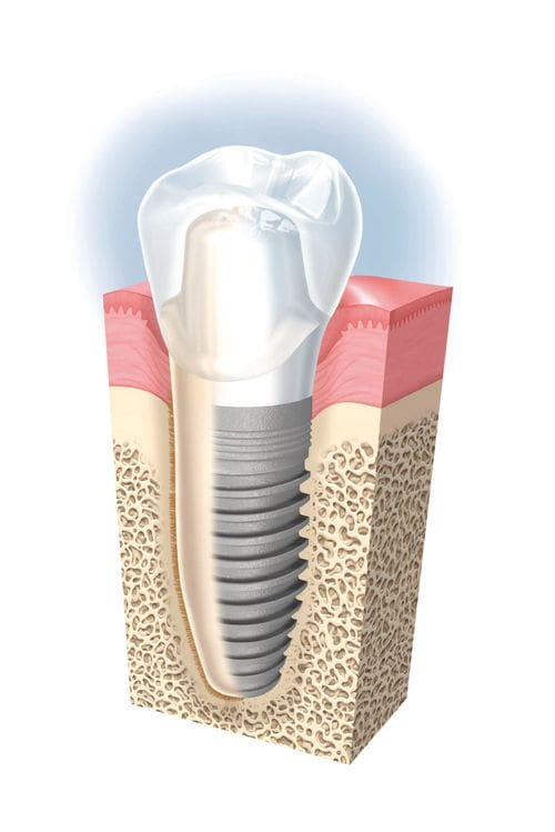 implants dentals a Girona