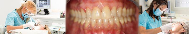 Rasage parodontal