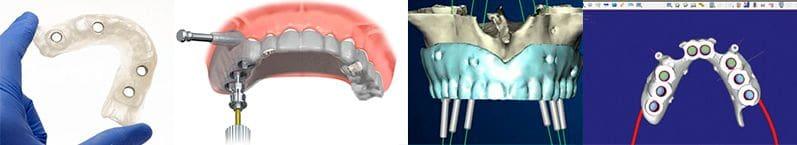 Chirurgie des implants avec une plaie (Simplant®)