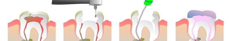 Endodontie mécanique et gutapercha