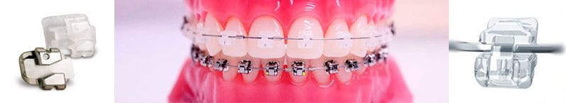 Fixed orthodontics buccal brackets (Metallic, Ceramic or Sapphire)