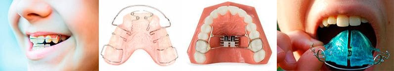 Functional Interceptive Orthodontics