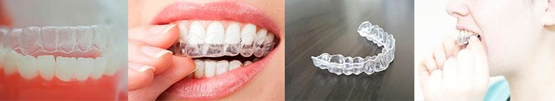 Orthodontie invisible (Invisalign®)