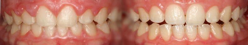 Chirurgie gingivale (sacs parodontaux)