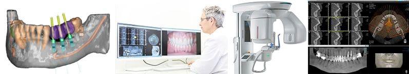Étude avec radiologie numérique