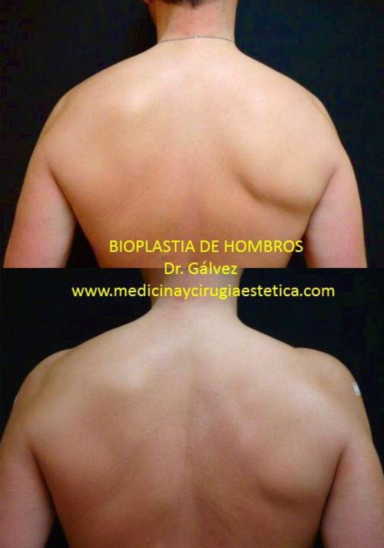 Bioplástia de hombros