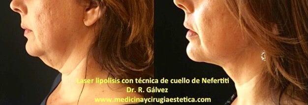 Láser lipolisis con técnica de cuello de Nefertiti